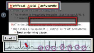 ECG Video-6 (Blog 100) Rhythm Mgmt-Part 3 (11-12.1-2014)