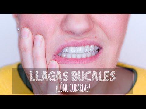 ampollas linear unit solfa syllable boca lengua