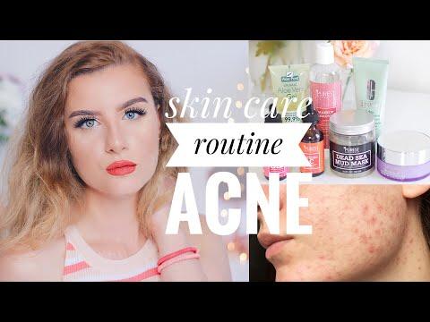 Skincare routine ACNE // Cura della pelle mista/secca/sensibile/acneica