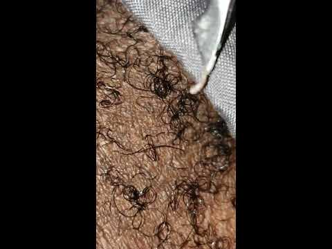 Long ingrown hair and sack removal