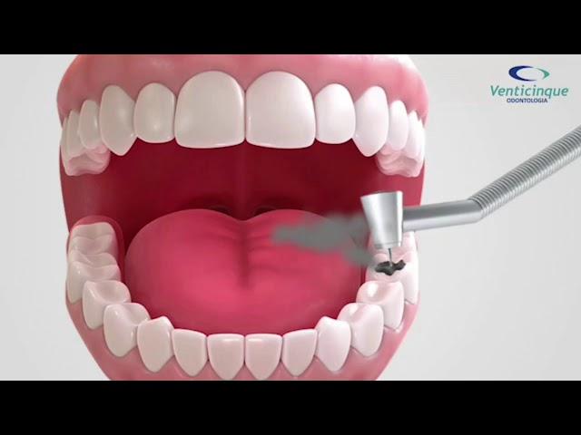 Você já viu dente soltando fumaça? Veja como os amálgamas podem liberar mercúrio