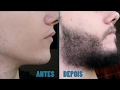 Evolução - Antes e Depois - Minoxidil Kirkland - Barba - 6 Meses.
