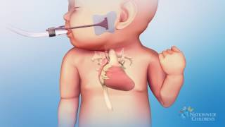 Hypoplastic Left Heart Syndrome (HLHS): Hybrid Stage One Procedure