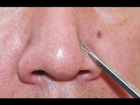 Как убрать черные точки на носу - Рецепты в домашних 37