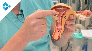 Myome: Diagnose, Behandlung & Schwangerschaft mit einem Myom | Dr. Schauer