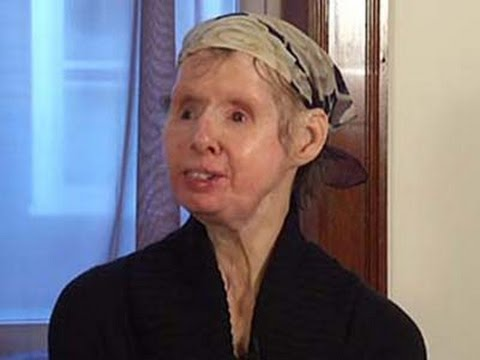 Military Hopes to Learn From Chimp Attack Victim