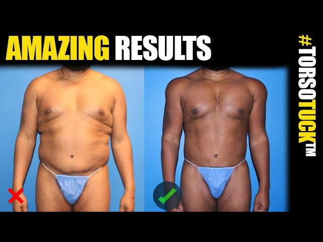 360 Torso Tuck Body Lift with BodyBanking for Men with Dr. Steinbrech