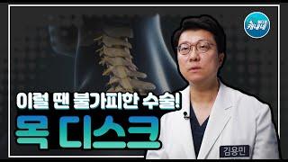 [건강365]목 디스크! 이럴 땐 수술이 불가피하다?(…