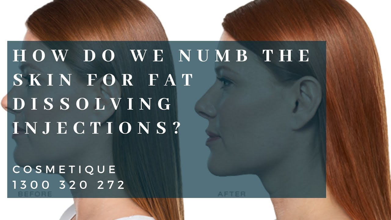 How do we numb the skin for Fat Dissolving Injections? | Cosmetique  Cosmetic Surgery Clinic