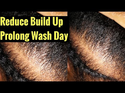 4 Ways To Keep A Clean Scalp Without Shampoo | Clean scalp No Poo