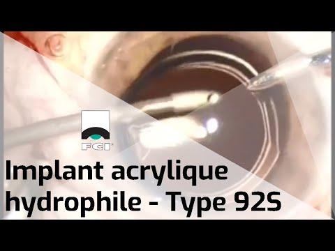 Vignette Vidéo | Pose de l'implant intraoculaire 92S