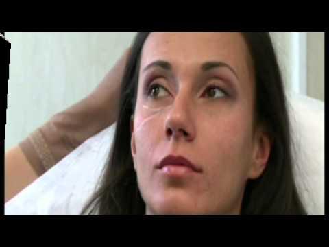 Уголемяване на устни без операция