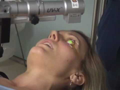 Collagen Cross-Linking For Keratoconus- Patient Testimonial & Video Procedure