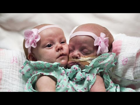 1-Year-Old Twin Girls Joined at the Chest Separated After Successful Operation