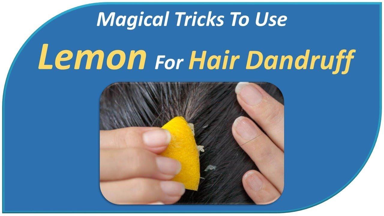 Magical Tricks To Use Lemon For Hair Dandruff - Diy Tips ...