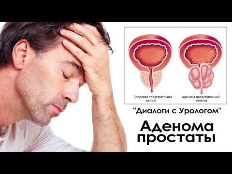 """""""Диалоги с Урологом"""" - Аденома простаты"""