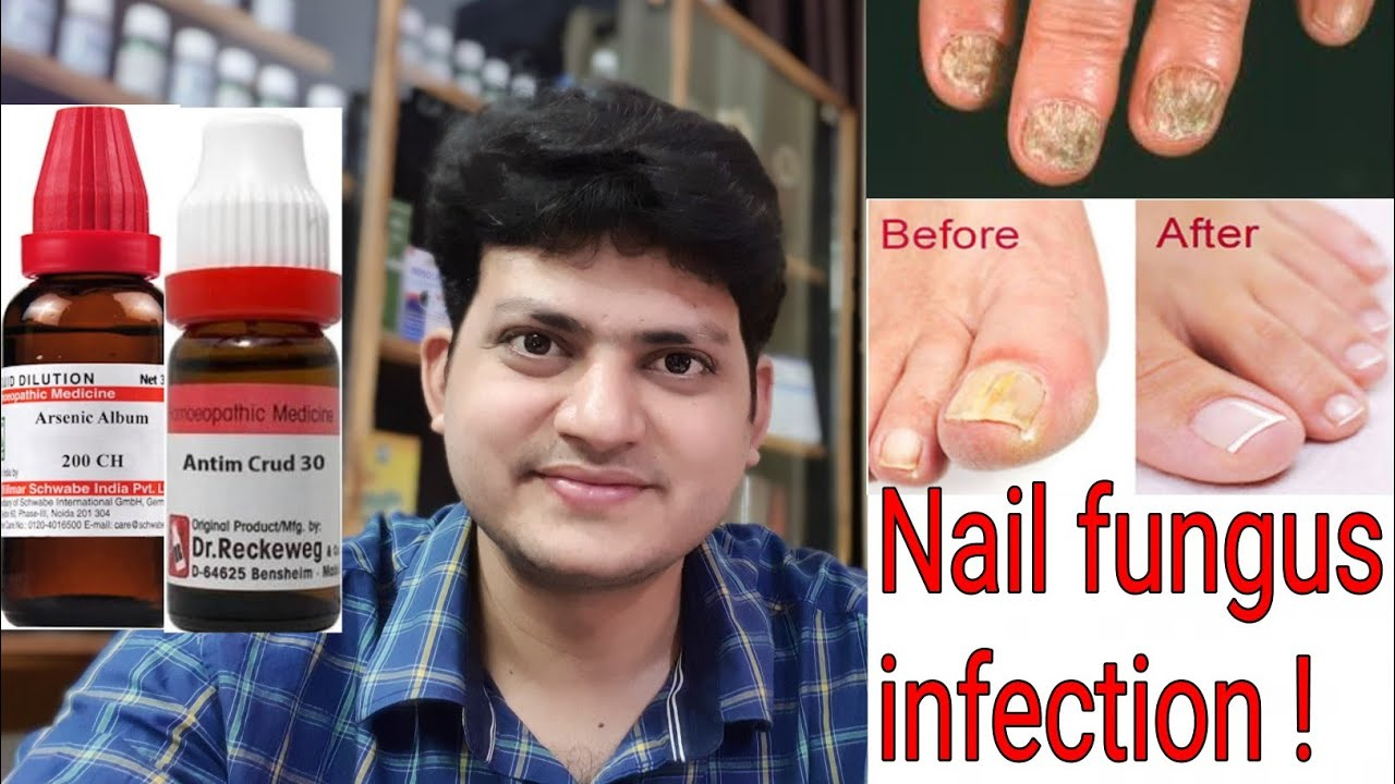 Nail fungus ! Homeopathic Medicine for Nail fungus infection ...