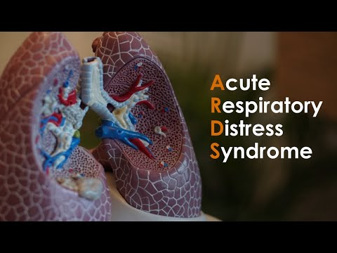 Acute Respiratory Distress Syndrome (ARDS) for USMLE Step1 and USMLE Step 2