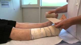 Ulcères et compressions veineuses en pratique