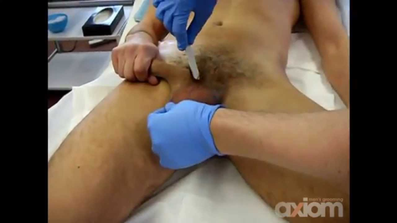 real-naked-women-brazilian-wax