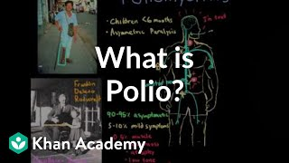 what-is-polio-infectious-diseases-nclex-rn-khan-academy