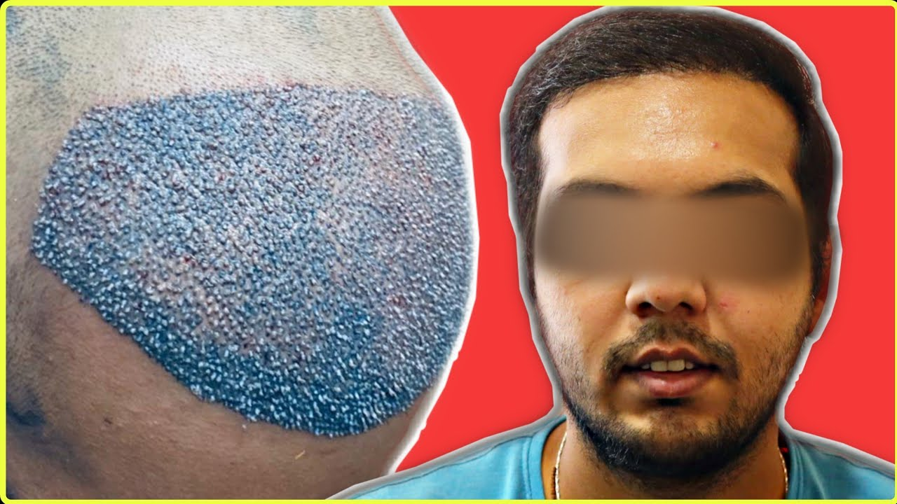 3051 GRAFTS HAIR TRANSPLANT BEST  RESULT IN LOW COST OF GRADE 3 BALDNESS