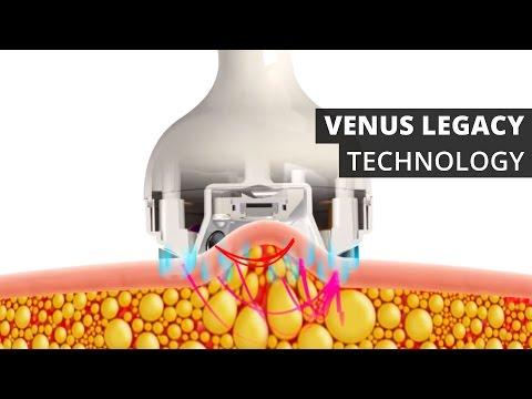 Venus Legacy™ Technology