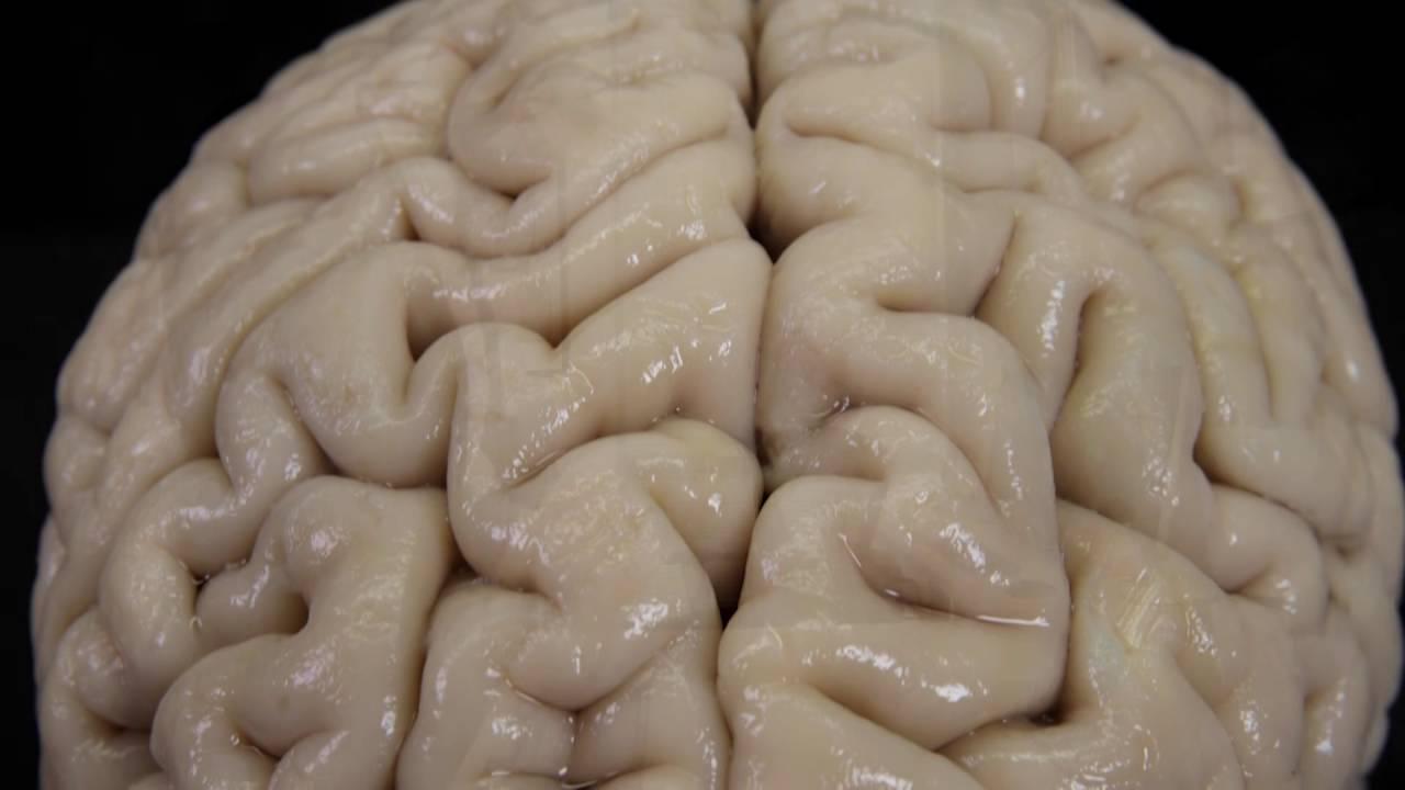 Five Ways In Which Postmortem Brain >> Methods Of Examining The Brain Youtube