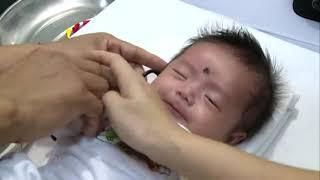 Phát hiện và chữa khiếm thính cho trẻ sơ sinh
