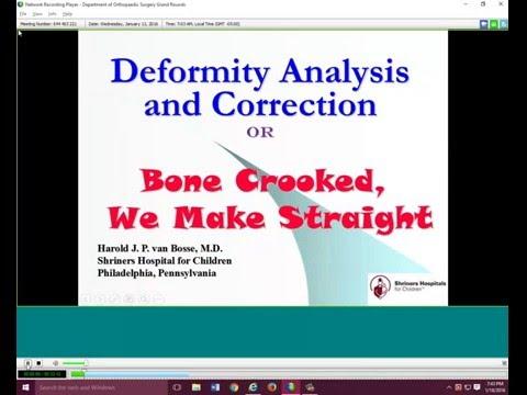Deformity Analysis and Correction