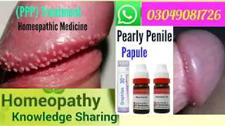 Pearly Penile Papule   Homeopathic medicine