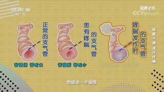 [健康之路]咳嗽不停 谁在作祟 支气管哮喘病人的支气管管壁比正常人厚| CCTV科教