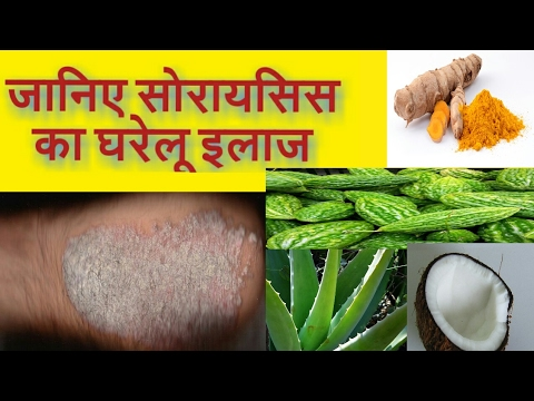 psoriasis skin disease treatment in hindi)