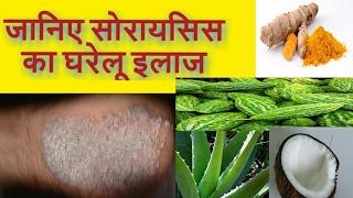Psoriasis Cure by Home Remedies in Hindi - सोरायसिस के घरेलू उपचार