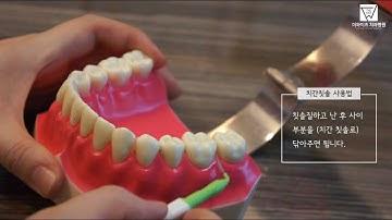 [더와이즈치과병원] 치간 칫솔 사용법