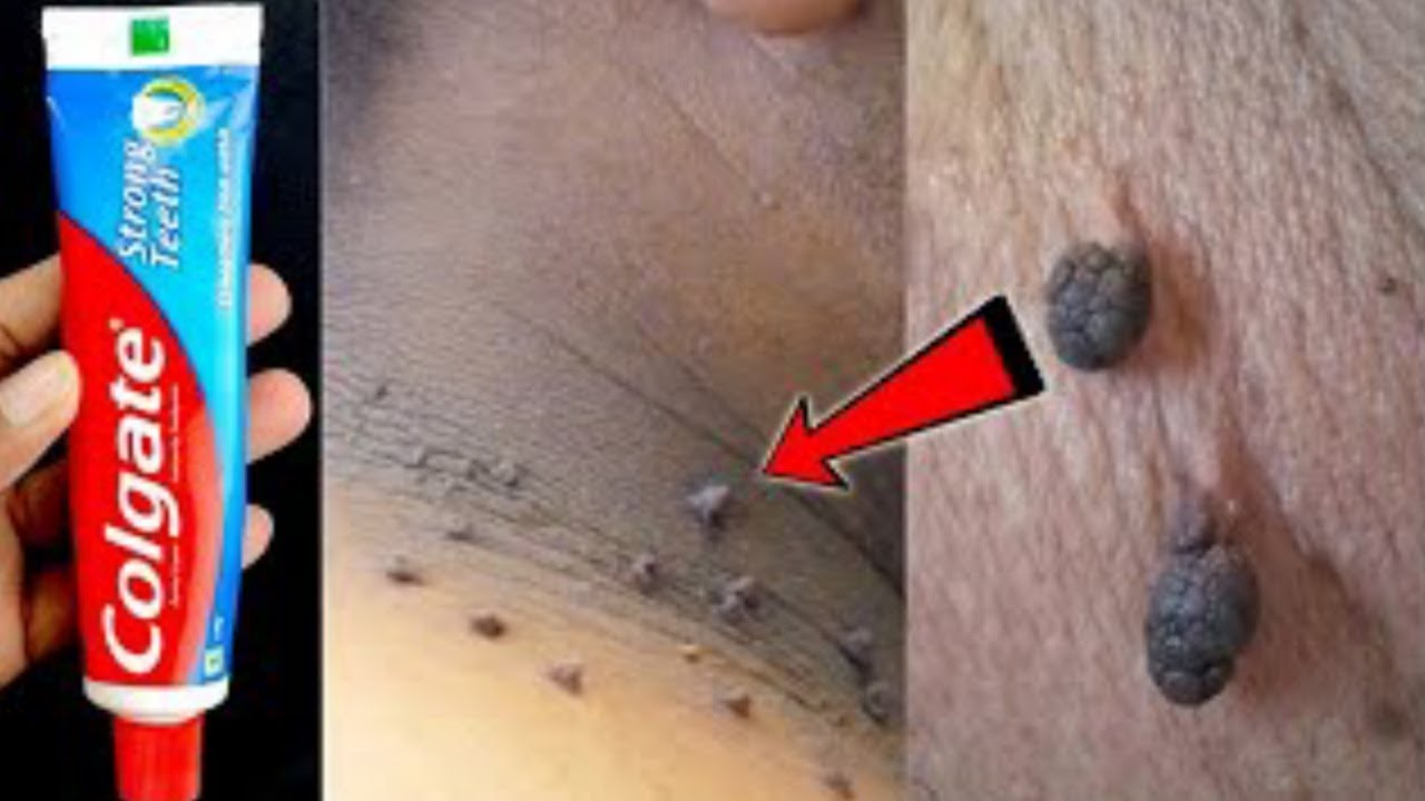 Remove Skin Tags Overnight With Toothpaste | How To Remove Skin Tags | Skin Tag Removal