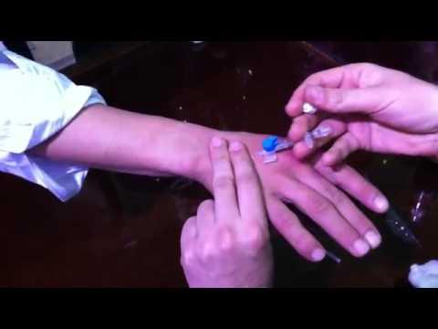 تعلم طريقة تركيب الكانيولا   الكالونا how to venous cannulation