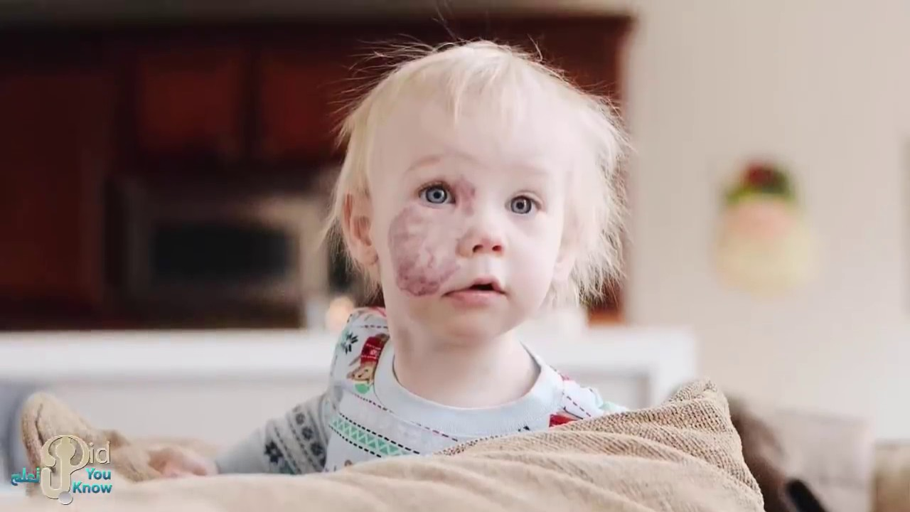 الجميع سخروا من هذه الطفلة بسبب وحمه في وجهها ..ولكن ما فعلته أمها صدمهم جميعا و غير حياة طفلتها !!