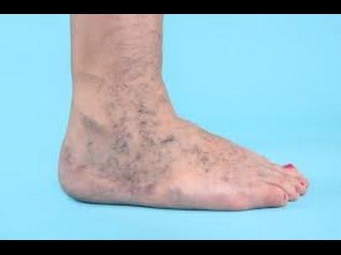 El practicar el deporte a varikoze de los pies