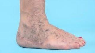 Ulceras varicosas en las piernas tratamiento natural casero(http://comoquitarlasvarices.com/varices-nunca-mas-si-funciona/ La úlcera varicosa en las piernas es el tema que trataremos el día de hoy. Sean bienvenidas y ..., 2013-12-13T21:59:38.000Z)