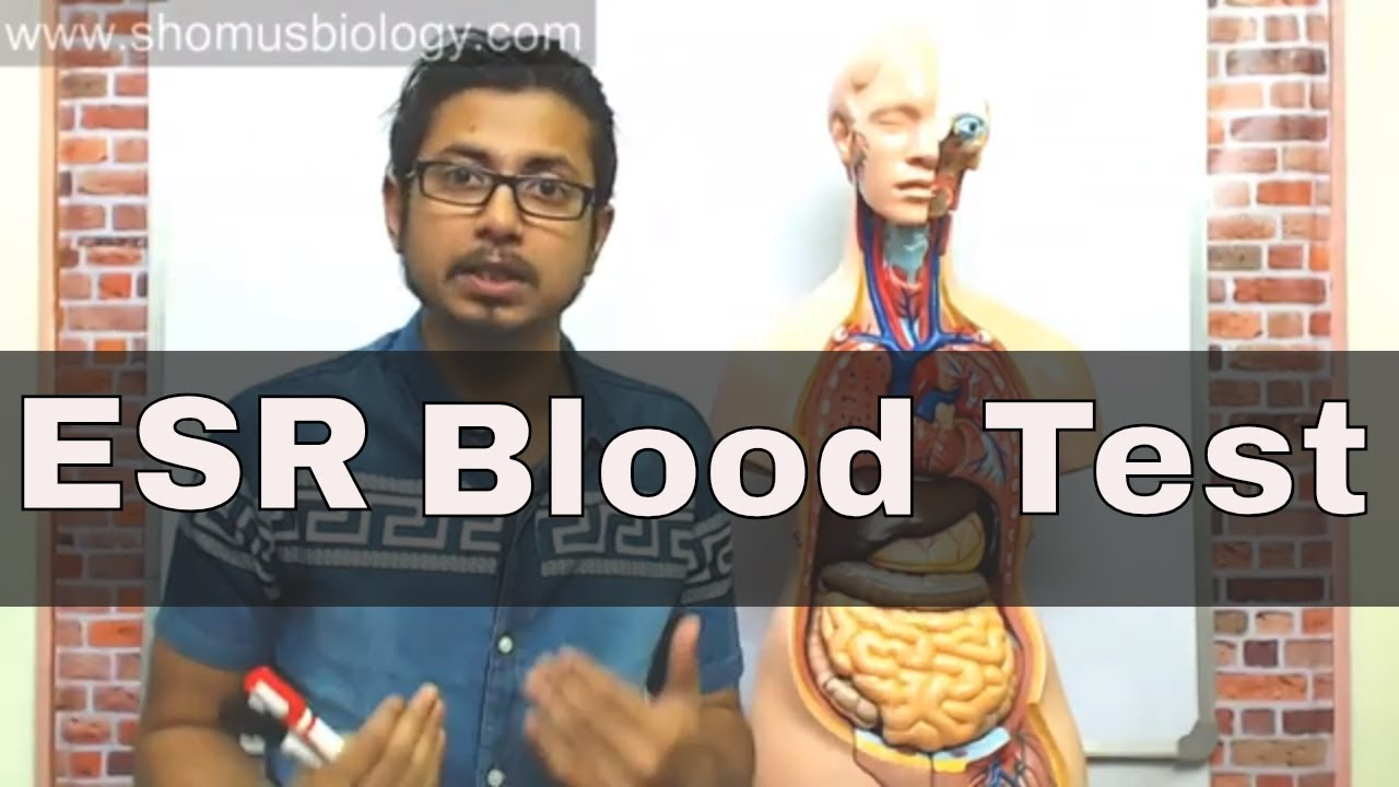 ESR test in Hindi (erythrocyte sedimentation rate test)