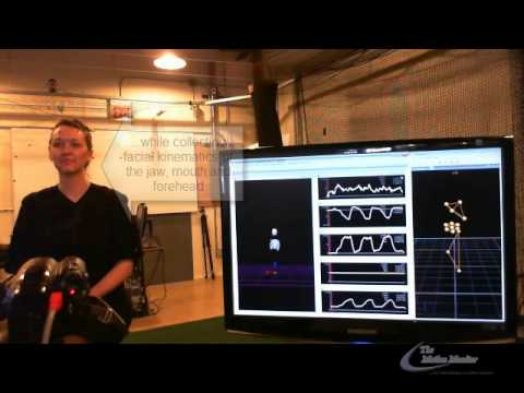The MotionMonitor for Facial Tracking with Realtime Biofeedback
