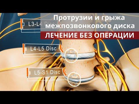 Протрузии и грыжа межпозвонкового диска. Лечение без операции.