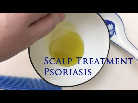 Scalp Treatment For Psoriasis