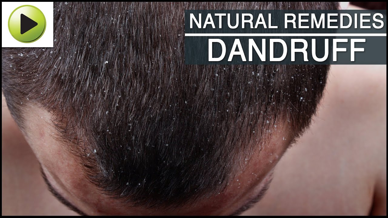 Hair Fungus Natural Remedies