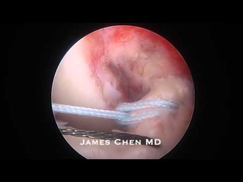 Arthroscopic Reduction and Fixation of Tibial Spine Avulsion Fracture