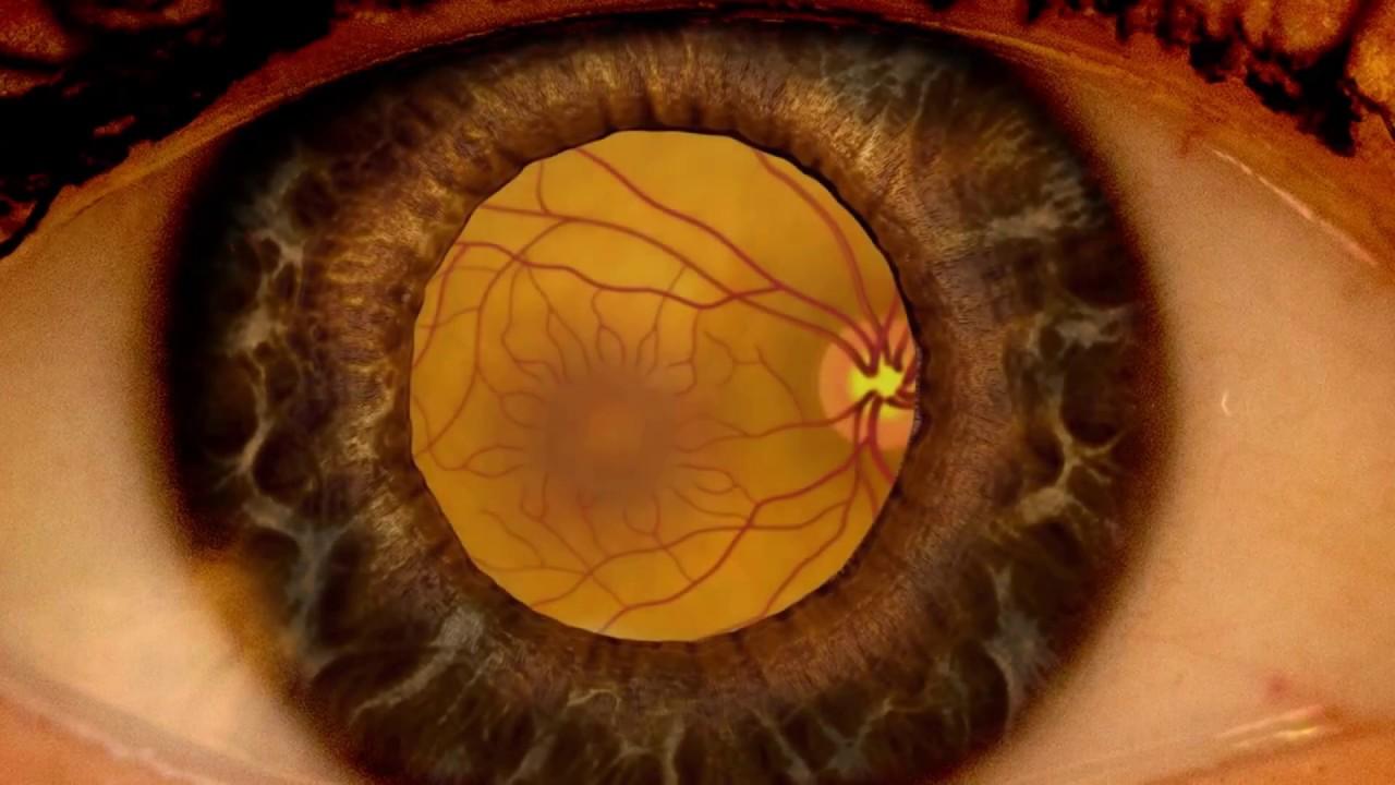 clinică pentru corecția vederii cu laser Tikhov