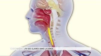 Glaires dans la gorge : comment s'en débarrasser ? - Le Magazine de la santé