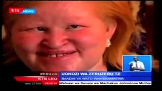 Raia wanaoishi  na ulemavu wa ngozi almaarufu albino wahafia usalama wao kufuatia kampeni Tanzania