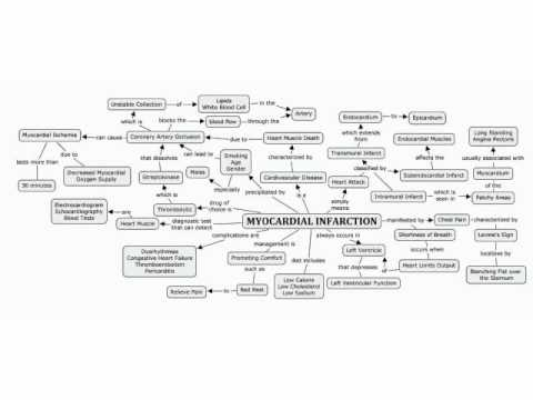 Concept Map of Myocardial Infarction   YouTube
